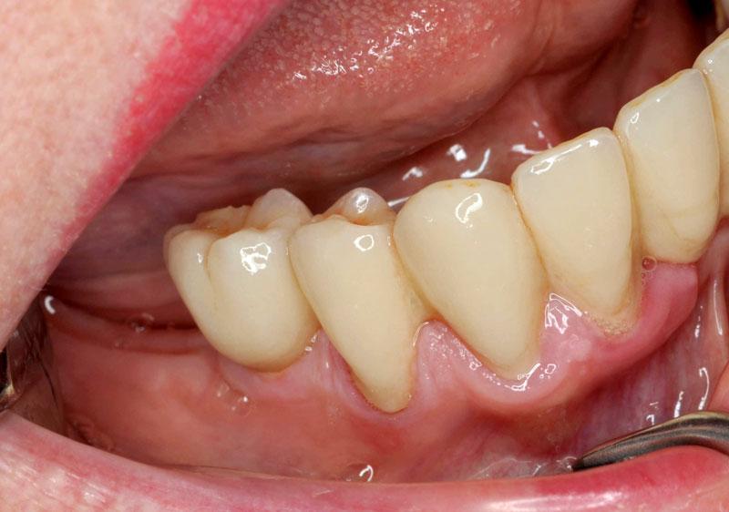 Keramik Implantat